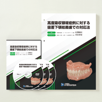 認定医講座DVD「高度吸収顎堤症例に対する吸着下顎総義歯での対応法」